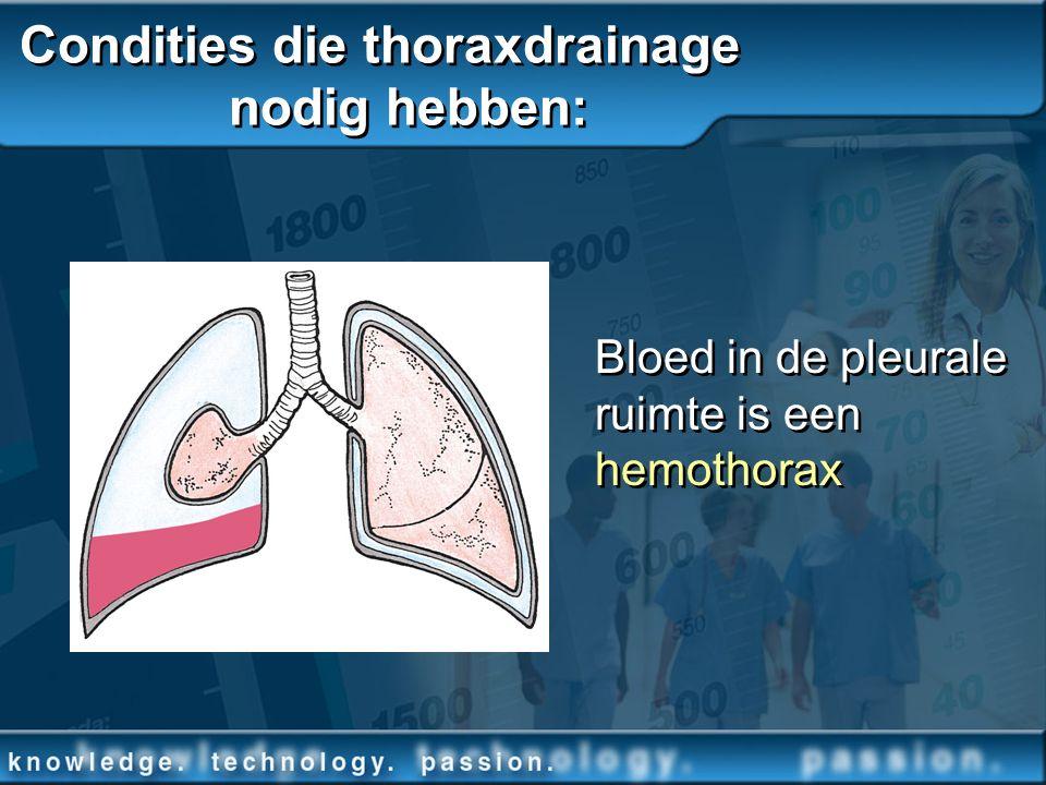Condities die thoraxdrainage nodig hebben: Bloed in de pleurale ruimte is een hemothorax