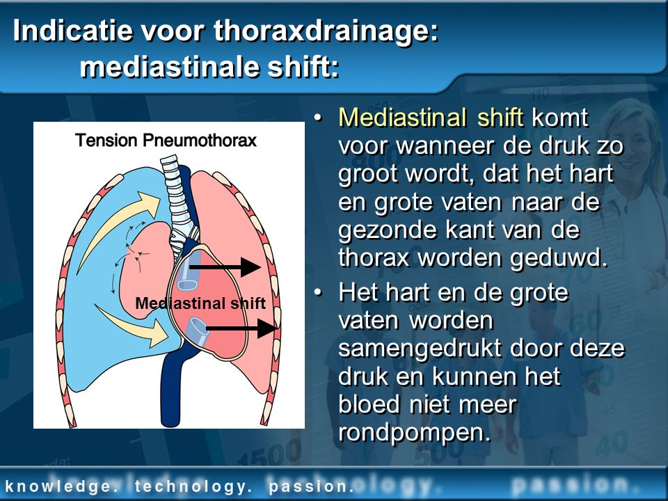 Indicatie voor thoraxdrainage: mediastinale shift: Mediastinal shift komt voor wanneer de druk zo groot wordt, dat het hart en grote vaten naar de gez