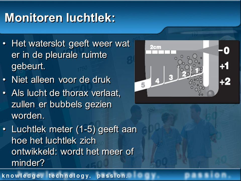 Monitoren luchtlek: Het waterslot geeft weer wat er in de pleurale ruimte gebeurt. Niet alleen voor de druk Als lucht de thorax verlaat, zullen er bub