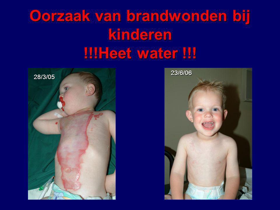 Oorzaak van brandwonden bij kinderen !!!Heet water !!! 28/3/05 23/6/06