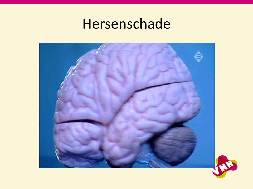 Hersenschade
