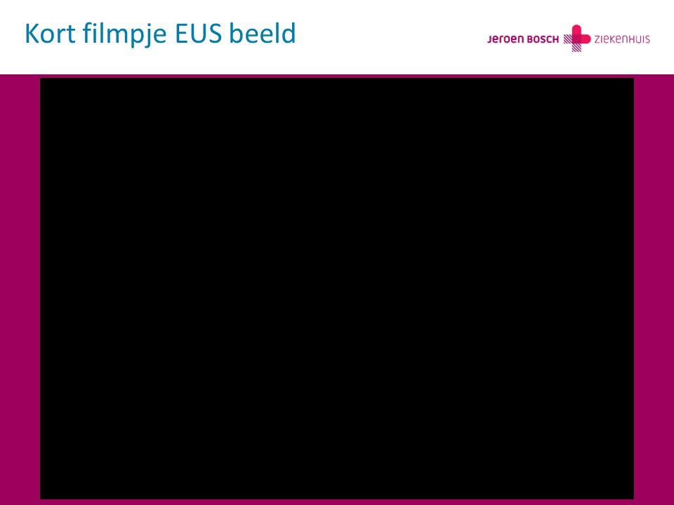 Kort filmpje EUS beeld