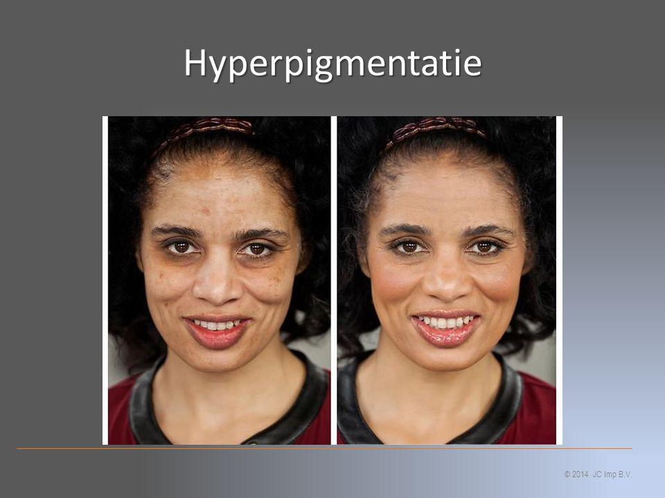 Hyperpigmentatie