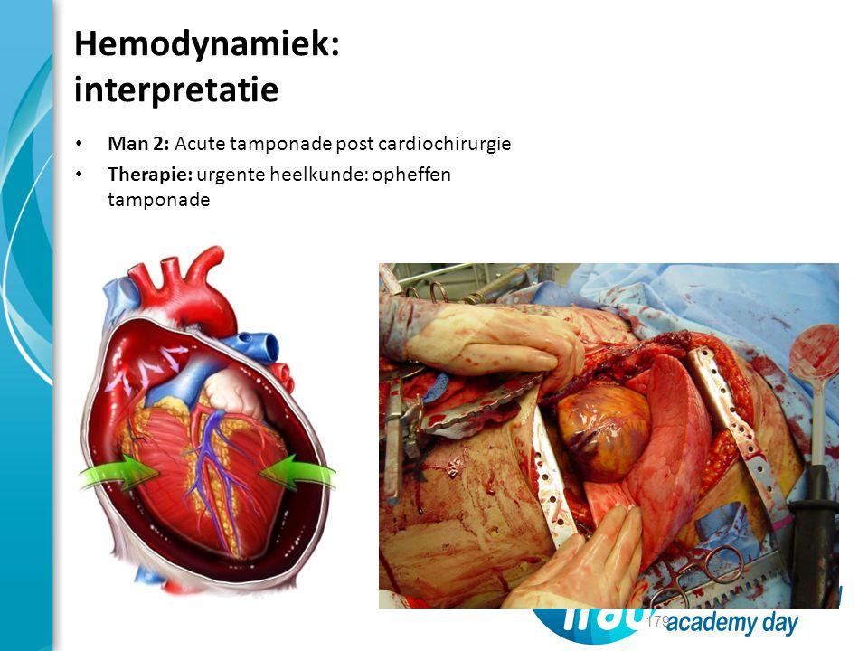 Man 2: Acute tamponade post cardiochirurgie Therapie: urgente heelkunde: opheffen tamponade 179 Hemodynamiek: interpretatie