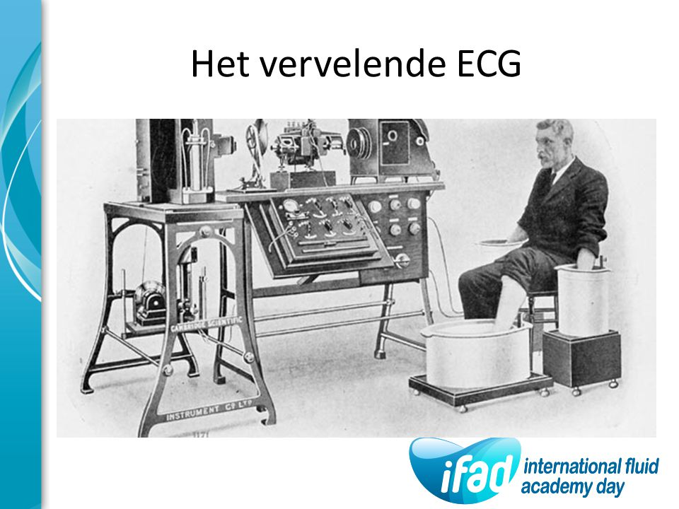 Het vervelende ECG