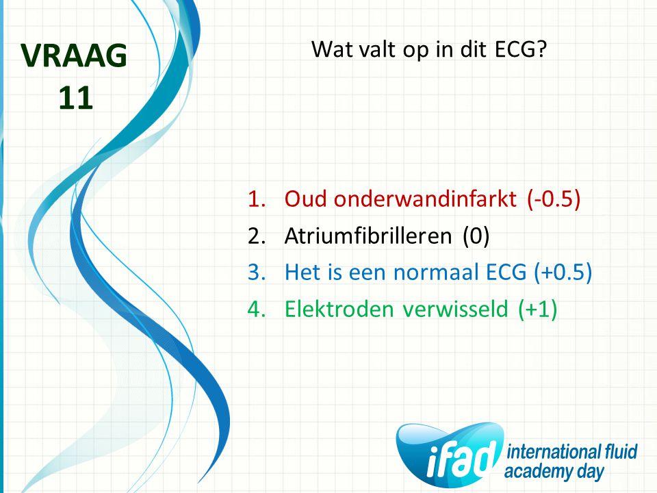 Wat valt op in dit ECG? VRAAG 11 1.Oud onderwandinfarkt (-0.5) 2.Atriumfibrilleren (0) 3.Het is een normaal ECG (+0.5) 4.Elektroden verwisseld (+1)