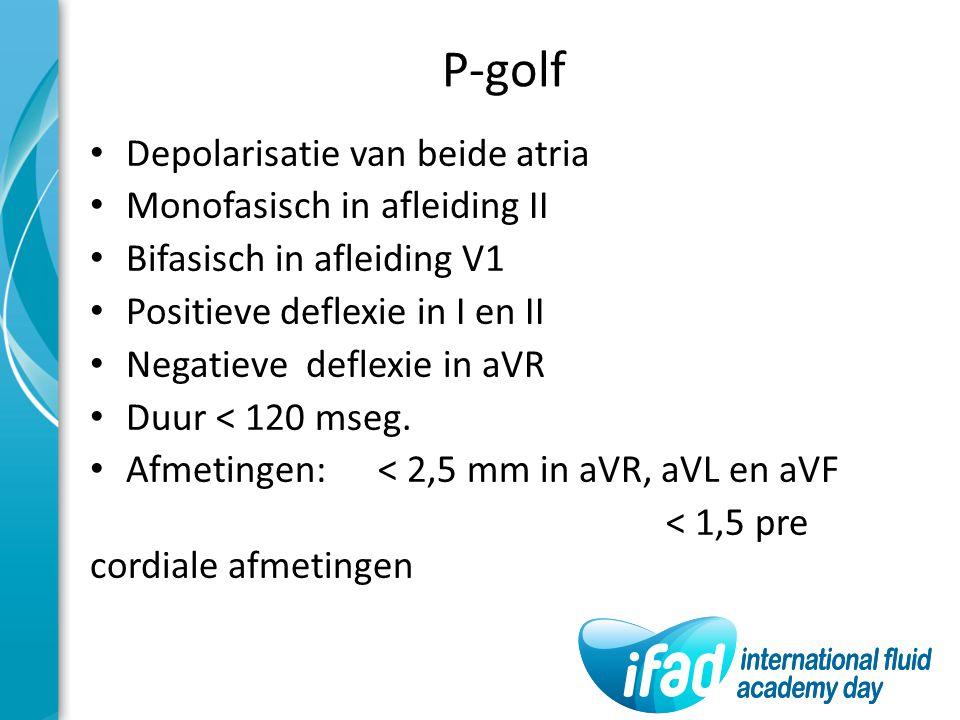 P-golf Depolarisatie van beide atria Monofasisch in afleiding II Bifasisch in afleiding V1 Positieve deflexie in I en II Negatieve deflexie in aVR Duu