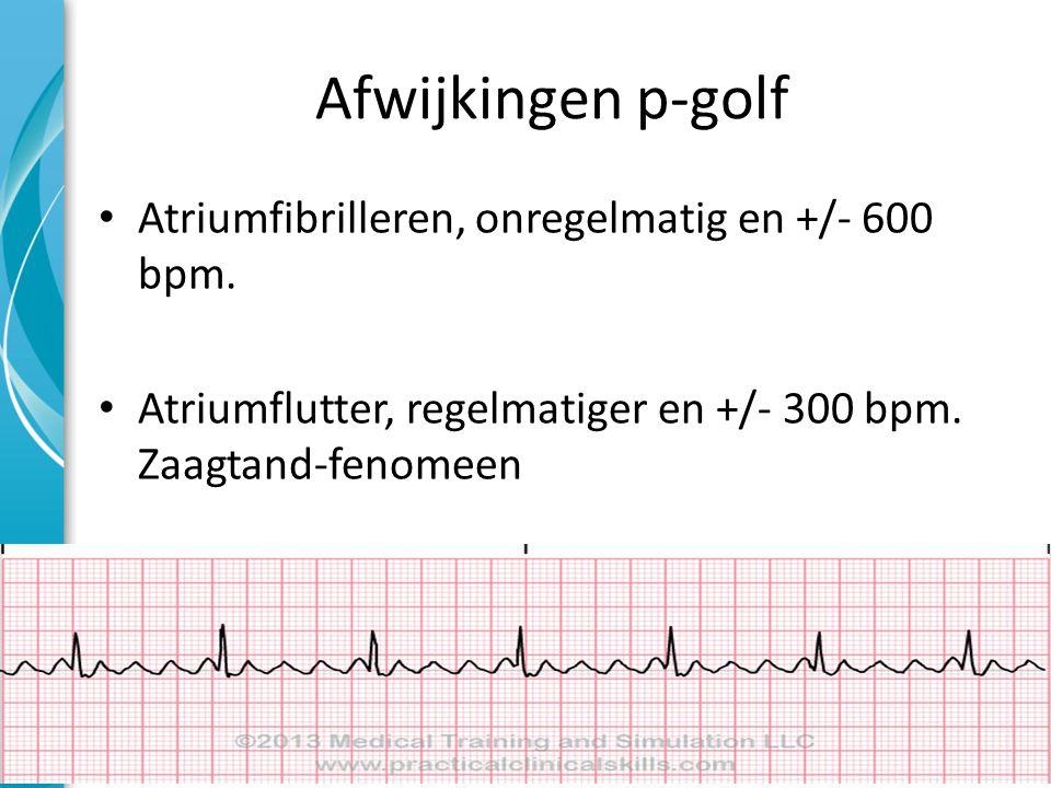 Afwijkingen p-golf Atriumfibrilleren, onregelmatig en +/- 600 bpm. Atriumflutter, regelmatiger en +/- 300 bpm. Zaagtand-fenomeen