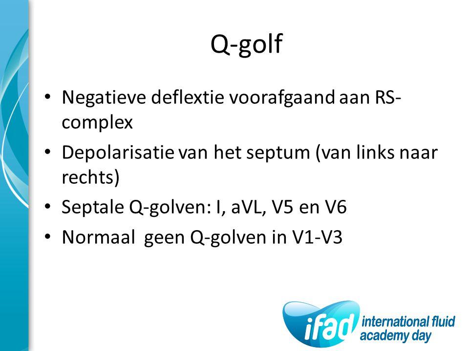 Q-golf Negatieve deflextie voorafgaand aan RS- complex Depolarisatie van het septum (van links naar rechts) Septale Q-golven: I, aVL, V5 en V6 Normaal