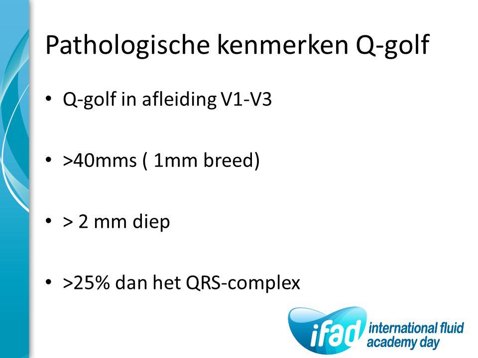Pathologische kenmerken Q-golf Q-golf in afleiding V1-V3 >40mms ( 1mm breed) > 2 mm diep >25% dan het QRS-complex