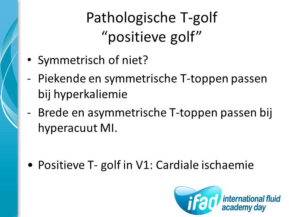 """Pathologische T-golf """"positieve golf"""" Symmetrisch of niet? -Piekende en symmetrische T-toppen passen bij hyperkaliemie -Brede en asymmetrische T-toppe"""