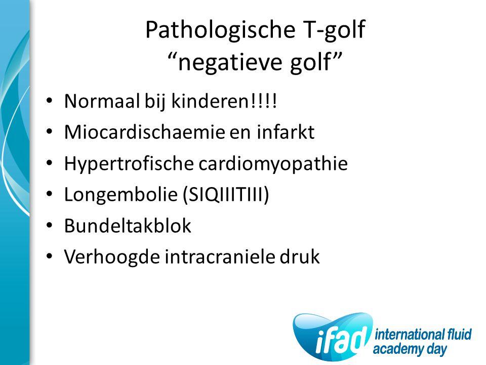 """Pathologische T-golf """"negatieve golf"""" Normaal bij kinderen!!!! Miocardischaemie en infarkt Hypertrofische cardiomyopathie Longembolie (SIQIIITIII) Bun"""