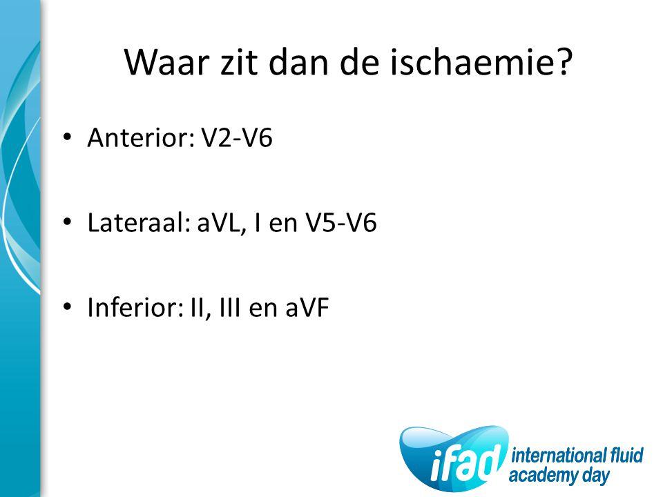 Waar zit dan de ischaemie? Anterior: V2-V6 Lateraal: aVL, I en V5-V6 Inferior: II, III en aVF