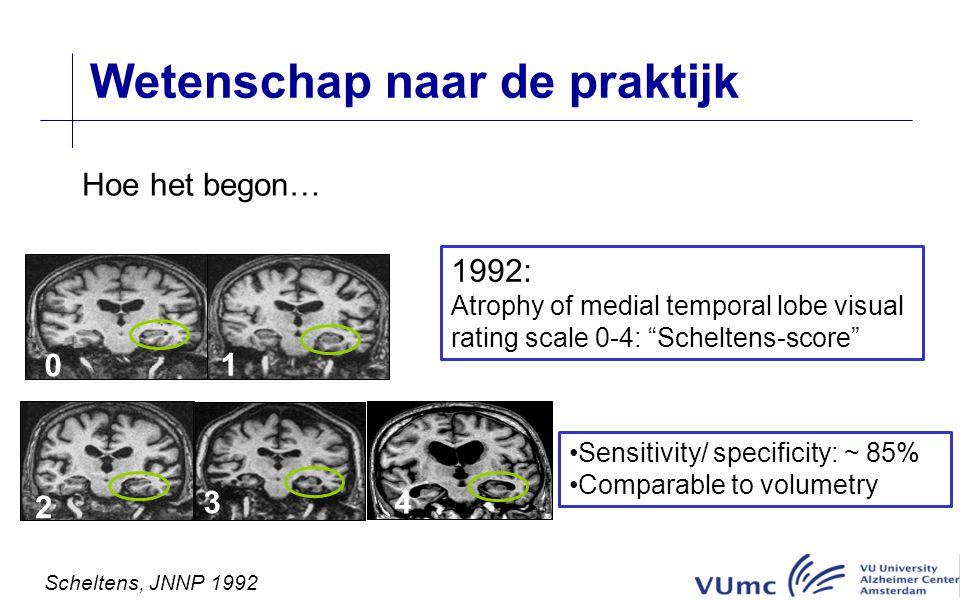 Wetenschap naar de praktijk Hoe het begon… 2 1 0 3 4 1992: Atrophy of medial temporal lobe visual rating scale 0-4: Scheltens-score Sensitivity/ specificity: ~ 85% Comparable to volumetry Scheltens, JNNP 1992