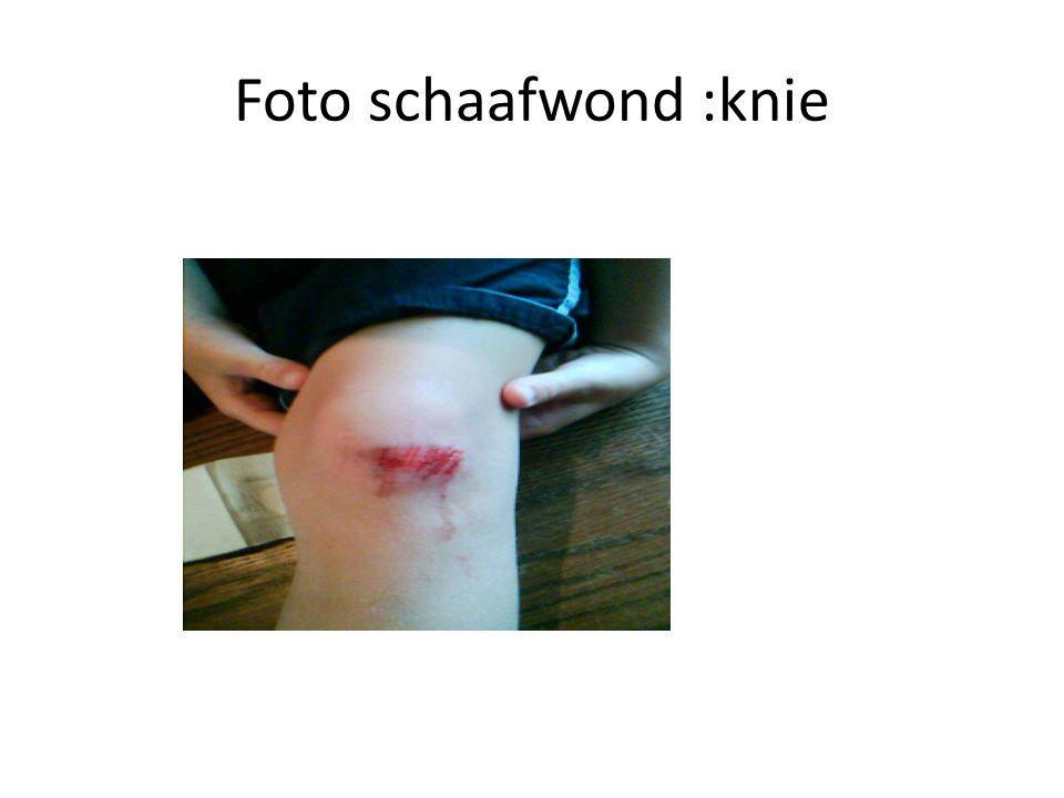 Snijwonden http://www.schooltv.nl/beeldbank/clip/20021104 _ http://www.schooltv.nl/beeldbank/clip/20021104 _ De gemiddelde Nederlander loopt zo n vier a vijf keer per jaar een bloedende snijwond op.