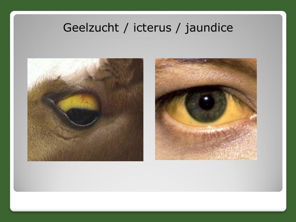 Geelzucht / icterus / jaundice
