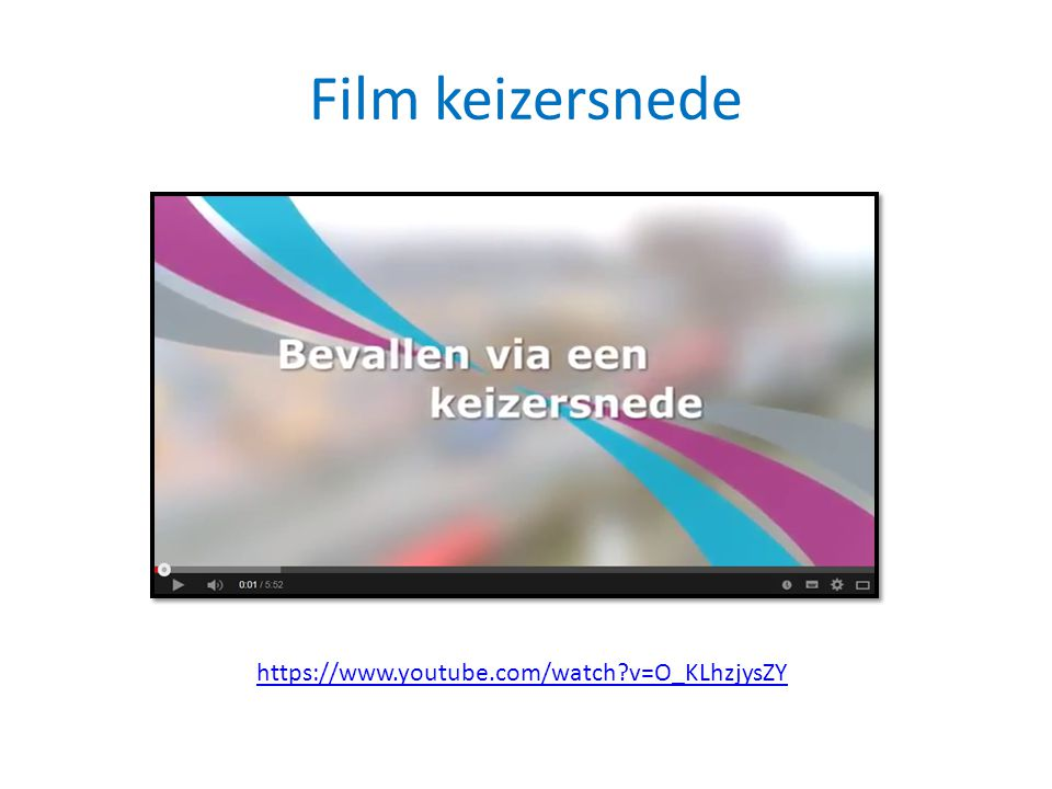 Film keizersnede https://www.youtube.com/watch?v=O_KLhzjysZY