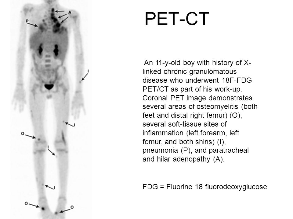 PET-CT An 11-y-old boy with history of X- linked chronic granulomatous disease who underwent 18F-FDG PET/CT as part of his work-up.