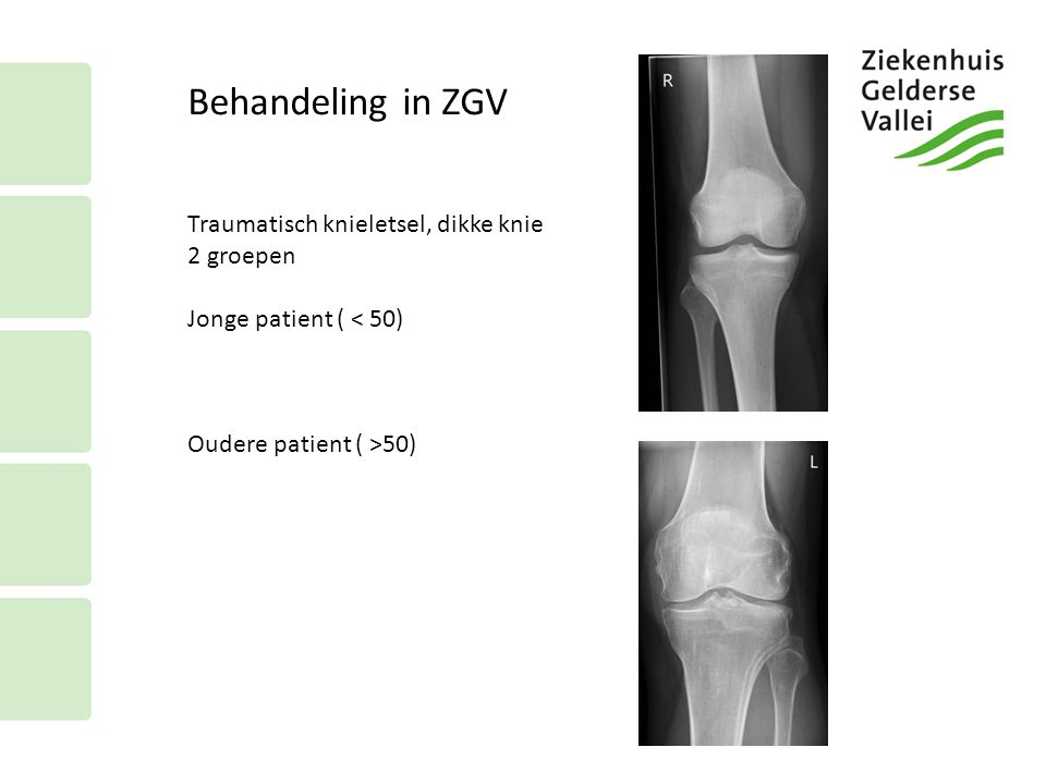 Behandeling in ZGV Traumatisch knieletsel, dikke knie 2 groepen Jonge patient ( < 50) Oudere patient ( >50)