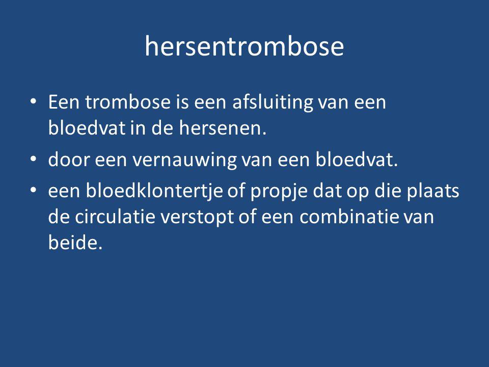 hersentrombose Een trombose is een afsluiting van een bloedvat in de hersenen. door een vernauwing van een bloedvat. een bloedklontertje of propje dat