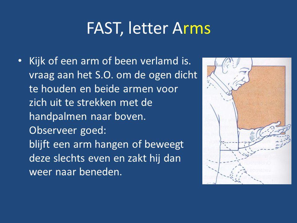 FAST, letter Arms Kijk of een arm of been verlamd is. vraag aan het S.O. om de ogen dicht te houden en beide armen voor zich uit te strekken met de ha