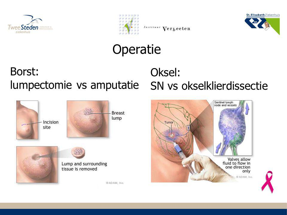 Lumpectomie grootte laesie relatie tot borstgrootte altijd radiotherapie oncoplastisch Amputatie multifocaal diffuus DCIS na irradicale chirurgie wens patiënte eerder radiotherapie