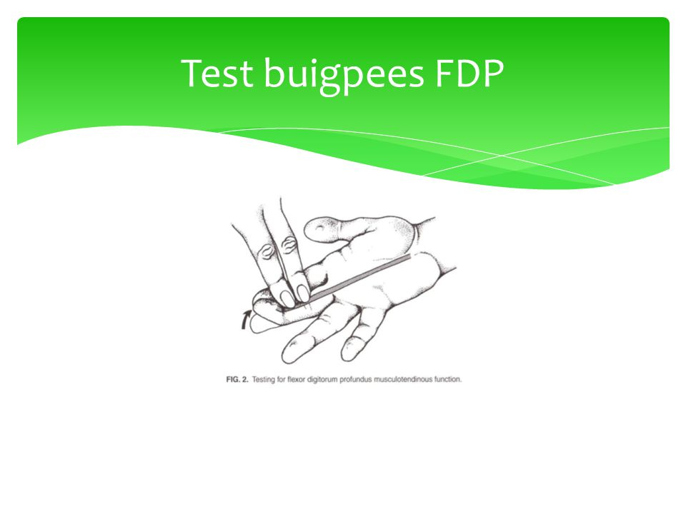 Test buigpees FDP