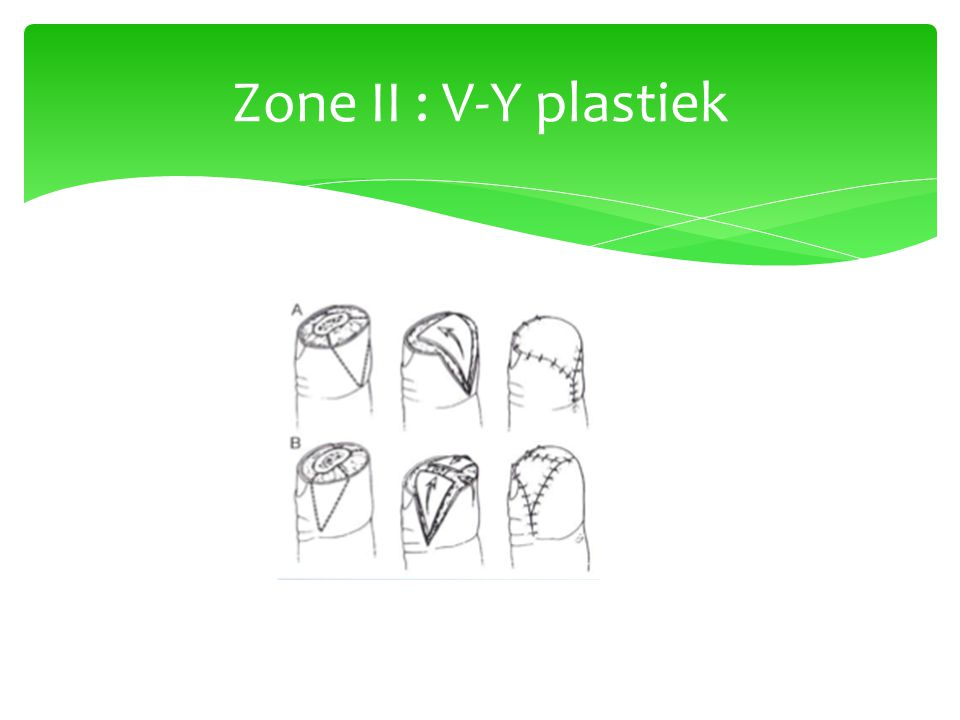 Zone II : V-Y plastiek
