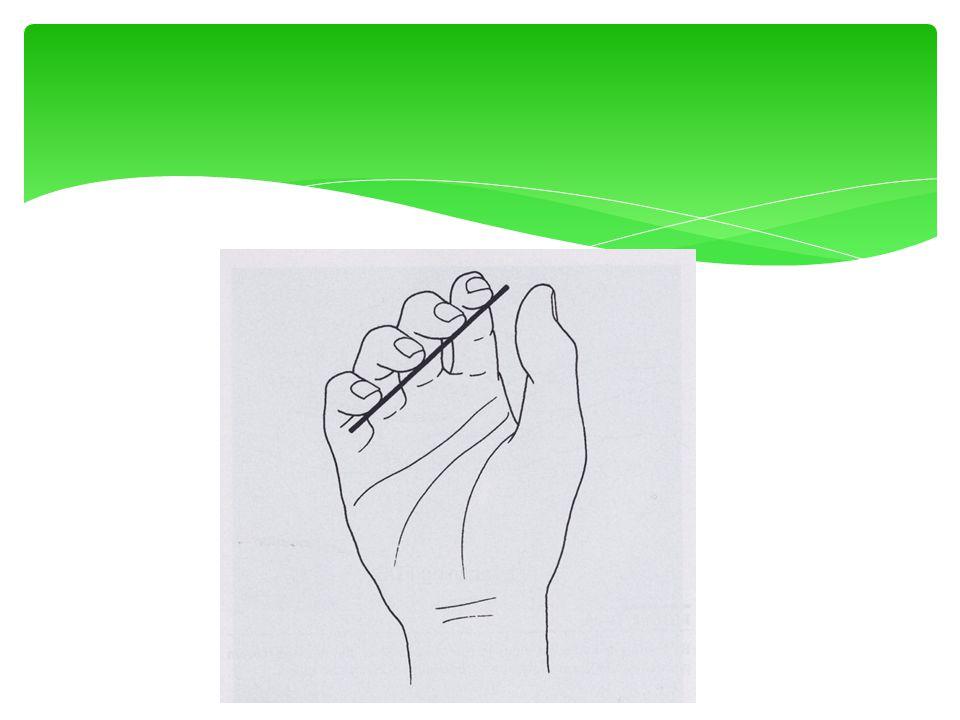Malletfinger : tendinogeen