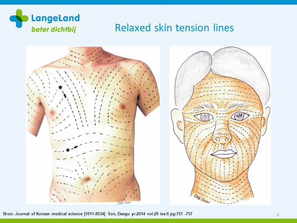 Relaxed skin tension lines 4 Bron: Journal of Korean medical science [1011-8934] Son, Daegu yr:2014 vol:29 iss:6 pg:751 -757