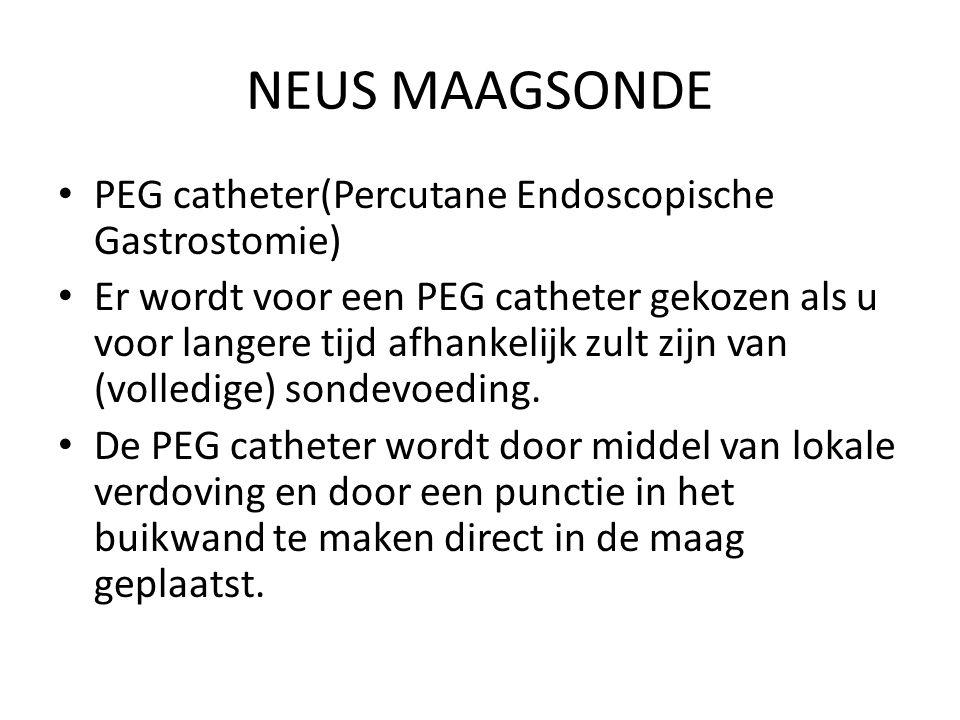 NEUS MAAGSONDE PEG catheter(Percutane Endoscopische Gastrostomie) Er wordt voor een PEG catheter gekozen als u voor langere tijd afhankelijk zult zijn van (volledige) sondevoeding.