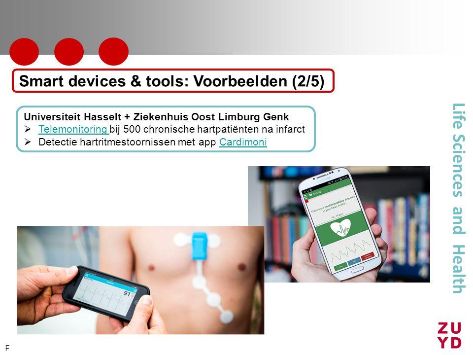 Life Sciences and Health Universiteit Hasselt + Ziekenhuis Oost Limburg Genk  Telemonitoring bij 500 chronische hartpatiënten na infarct Telemonitori