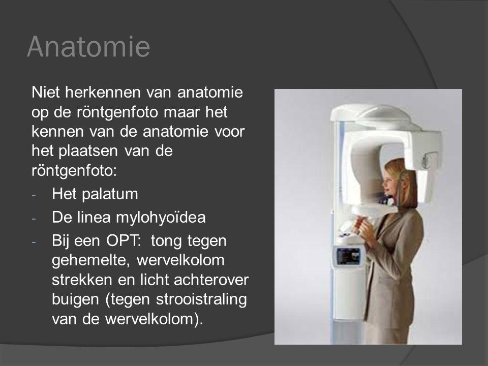 Anatomie Niet herkennen van anatomie op de röntgenfoto maar het kennen van de anatomie voor het plaatsen van de röntgenfoto: - Het palatum - De linea