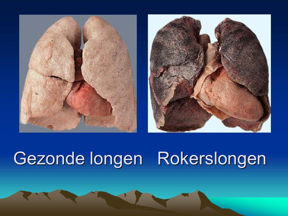 Wat is er aan te doen.Astma verbetert meestal niet vanzelf.