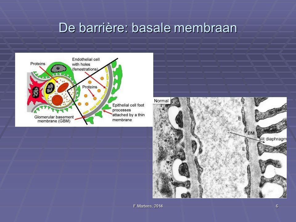 F.Martens, 20147 Overzicht glomerulopathieën Immuungemedieerde GPs Antistoffen tegen Ag van basale membraan (GBM) Neerslag van immuncomplexen … Niet immuungemedieerde GPs Metabole aandoeningen Infecties Congenitale afwijkingen Vasculaire aandoeningen Toxische reacties Hemolyse… Ook indeling volgens al dan niet proliferatie