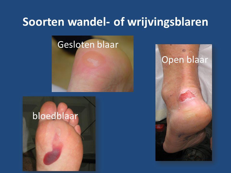 Soorten wandel- of wrijvingsblaren Gesloten blaar Open blaar bloedblaar