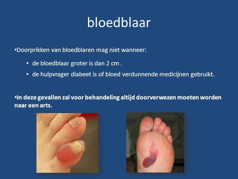 bloedblaar Doorprikken van bloedblaren mag niet wanneer: de bloedblaar groter is dan 2 cm. de hulpvrager diabeet is of bloed verdunnende medicijnen ge