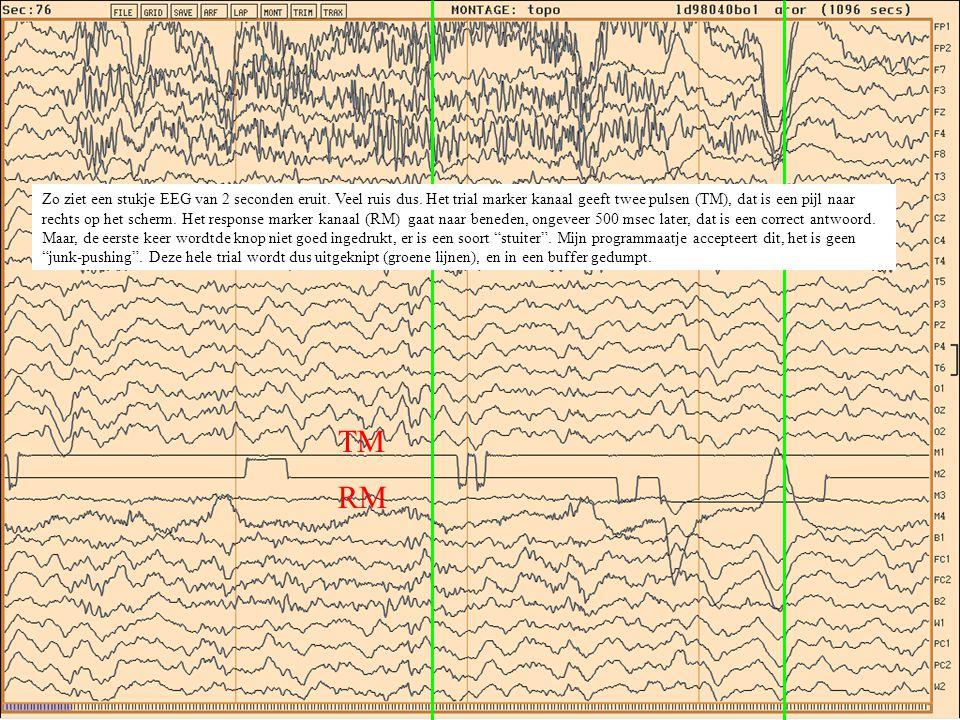 Als je alle stukjes EEG uitknipt (Voor elk correct antwoord, per stimulus (links, rechts, noarrow), per electrode) en ze allemaal bij elkaar optelt krijg je een enorme som.
