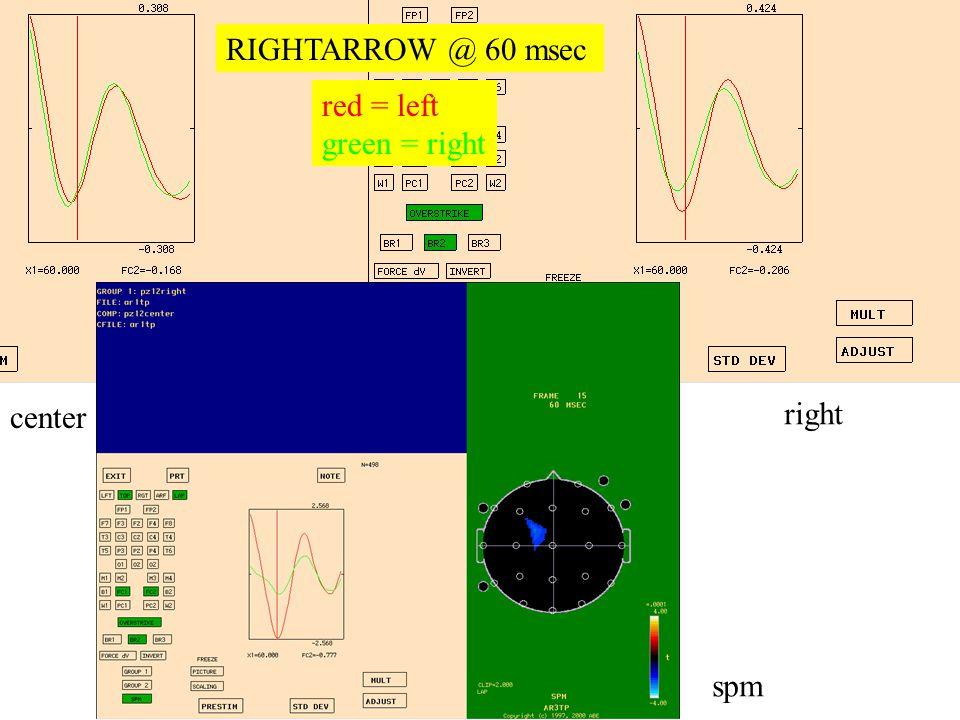 right center spm RIGHTARROW @ 60 msec red = left green = right