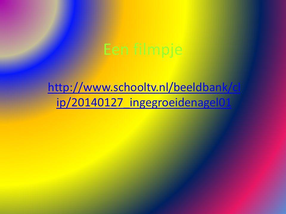 Een filmpje http://www.schooltv.nl/beeldbank/cl ip/20140127_ingegroeidenagel01