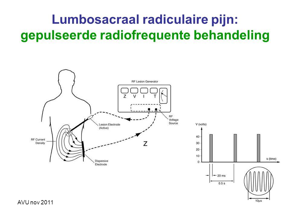 AVU nov 2011 Lumbosacraal radiculaire pijn: gepulseerde radiofrequente behandeling