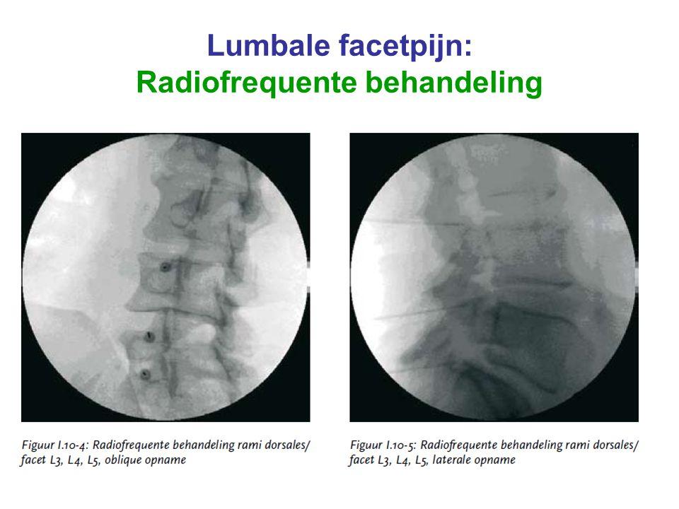 AVU sept 2009 Lumbale facetpijn: Radiofrequente behandeling