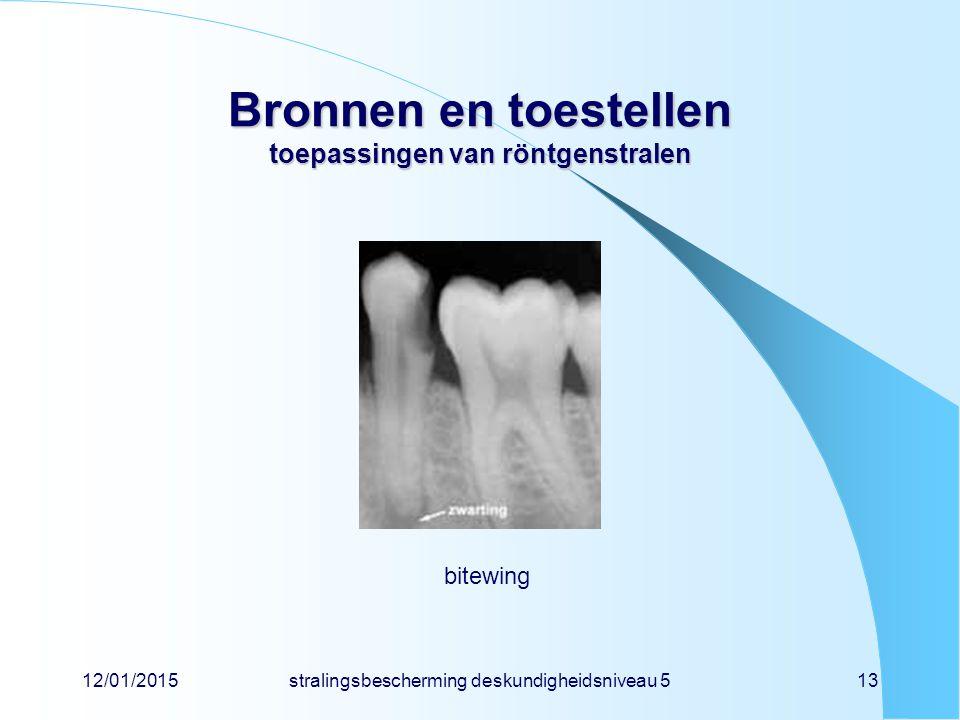 12/01/2015stralingsbescherming deskundigheidsniveau 513 Bronnen en toestellen toepassingen van röntgenstralen bitewing