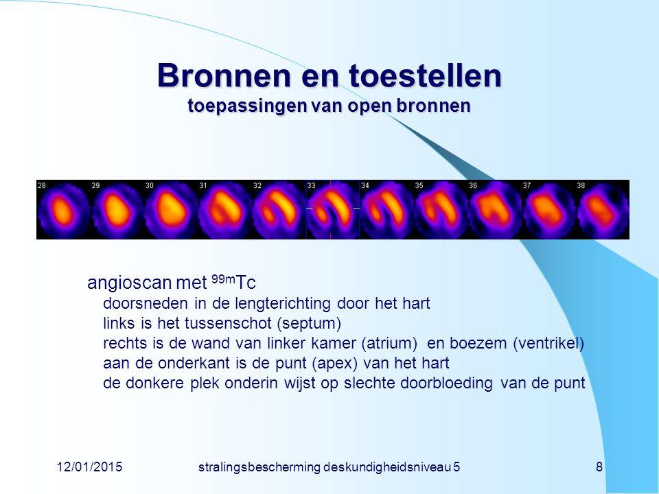 12/01/2015stralingsbescherming deskundigheidsniveau 58 Bronnen en toestellen toepassingen van open bronnen angioscan met 99m Tc doorsneden in de lengt