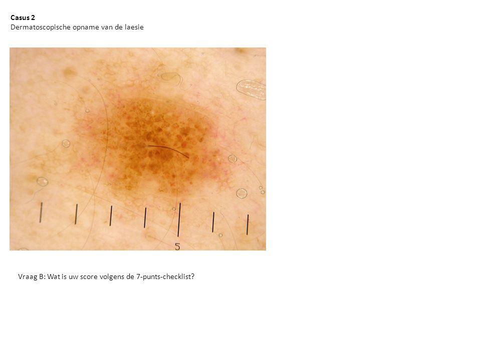 Casus 2 Dermatoscopische opname van de laesie Vraag B: Wat is uw score volgens de 7-punts-checklist?