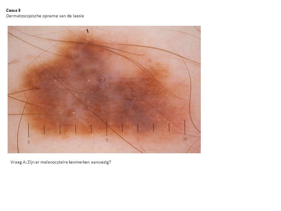 Casus 3 Dermatoscopische opname van de laesie Vraag A: Zijn er melanocytaire kenmerken aanwezig?