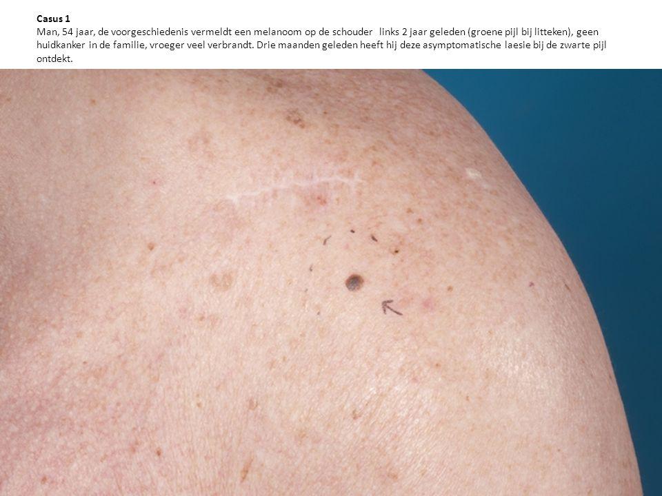Casus 1 Man, 54 jaar, de voorgeschiedenis vermeldt een melanoom op de schouder links 2 jaar geleden (groene pijl bij litteken), geen huidkanker in de