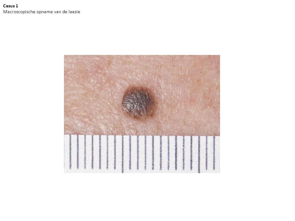 Casus 1 Dermatoscopische opname van de laesie Vraag A: Zijn er melanocytaire kenmerken aanwezig?