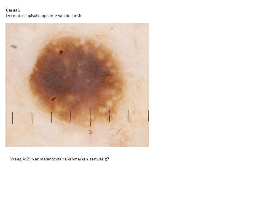 Casus 3 Macroscopische opname van de laesie
