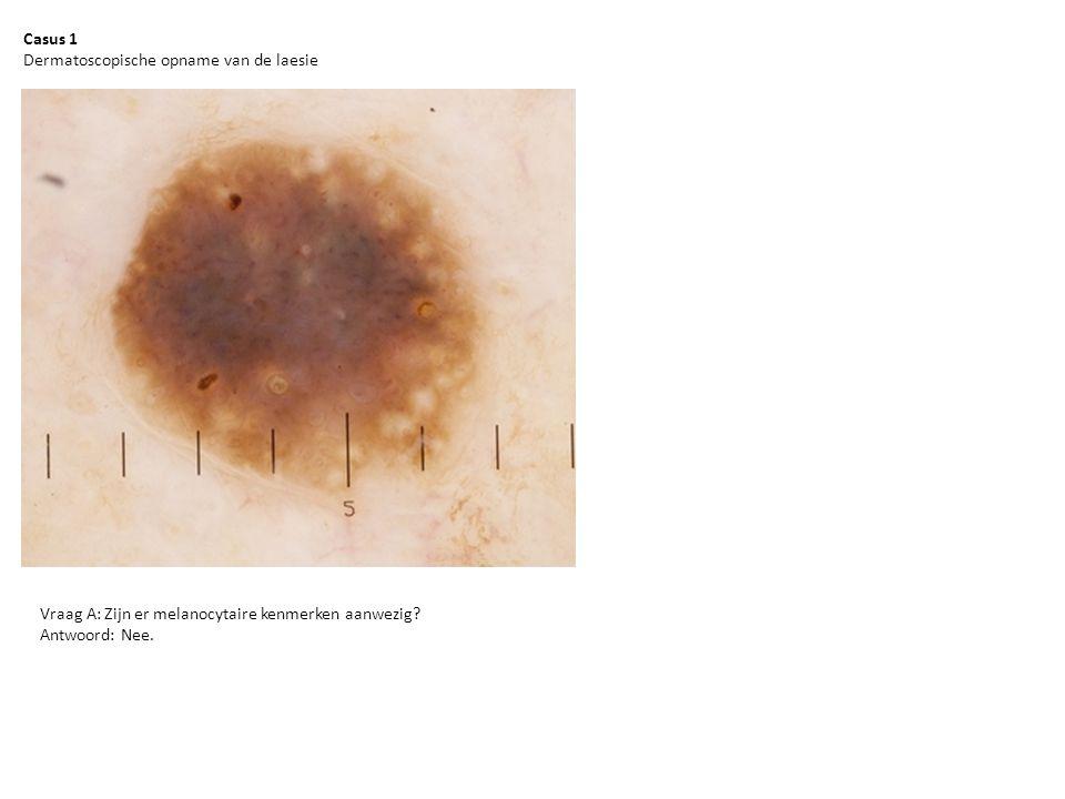 Casus 1 Dermatoscopische opname van de laesie Vraag A: Zijn er melanocytaire kenmerken aanwezig? Antwoord: Nee.